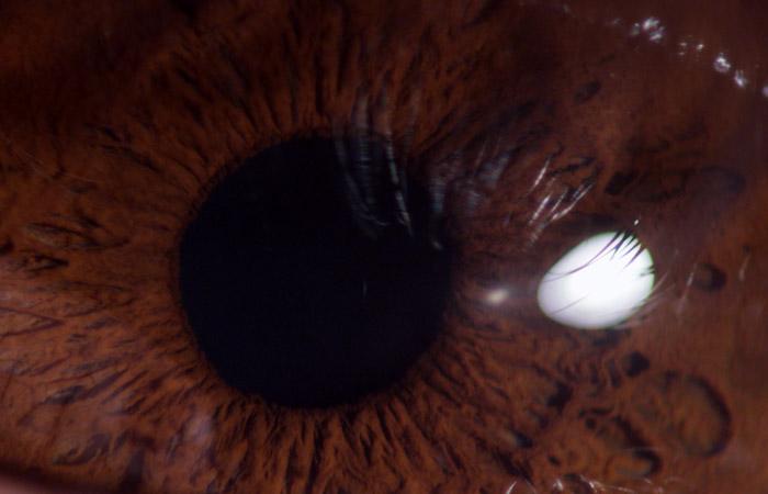 Eyeball 2