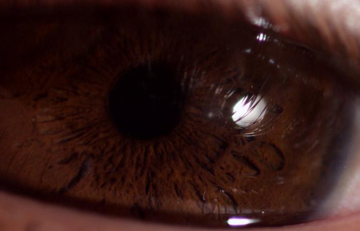 Eyeball 4