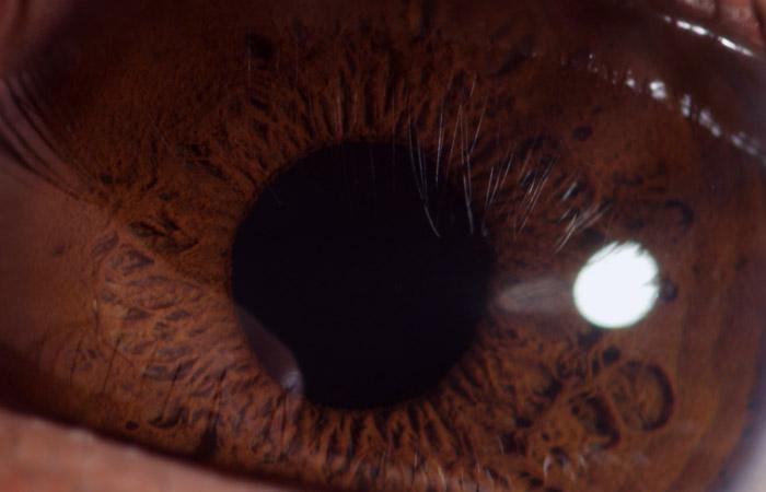 Eyeball 5