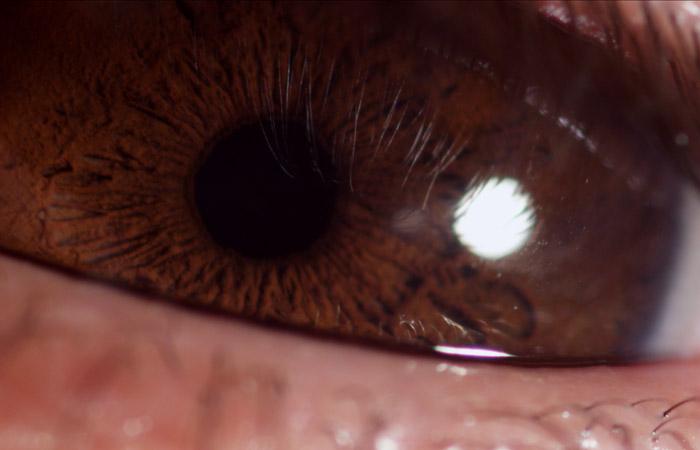 Eyeball 6