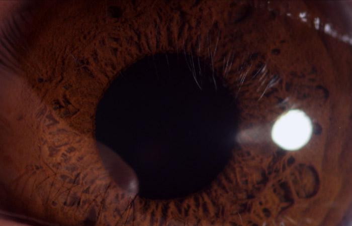 Eyeball 7