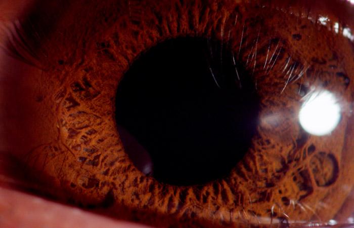 Eyeball 8
